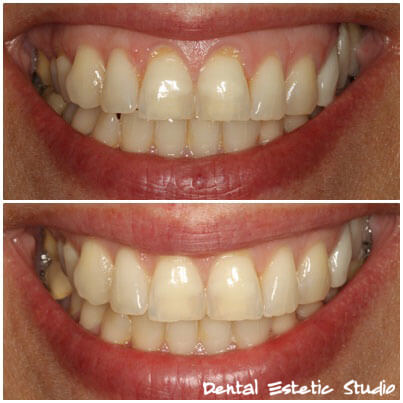 gummy smile - korekcija osmijeha