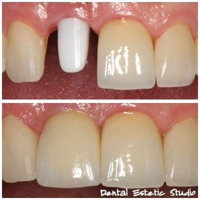 Zubni Implantat sa cirkonskim abutmentom