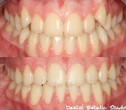 Prije i poslije fiksne ortodontske terapije