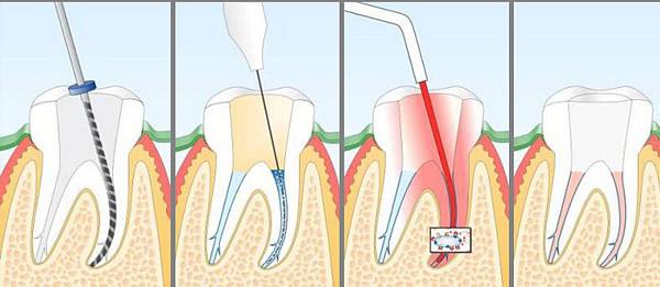 liječenje zubnog živca