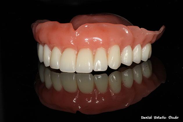 Totalna zubna proteza